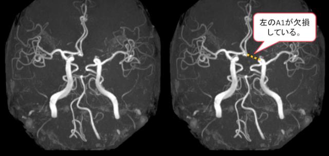 willis動脈輪のうち前大脳動脈(ACA)のA1が欠損している正常変異のMRA画像