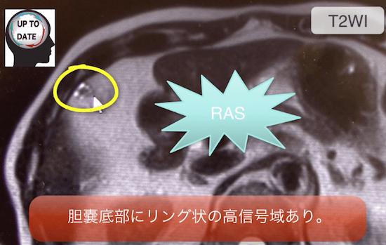GB adenomyomatosis