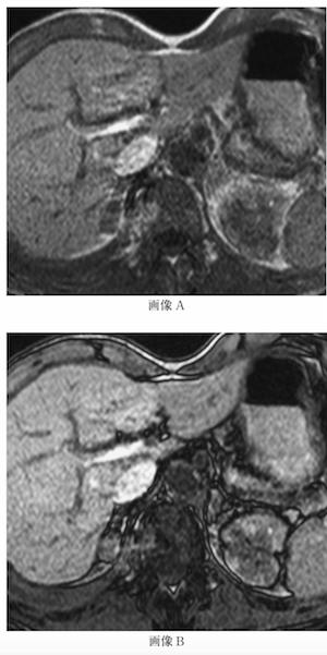 adrenal metastasis