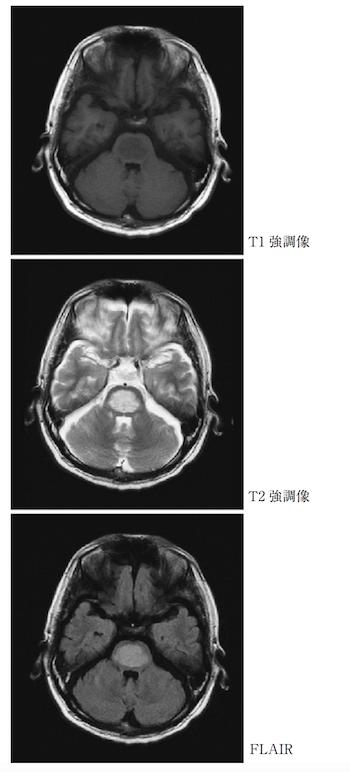osmotic demyelination syndrome