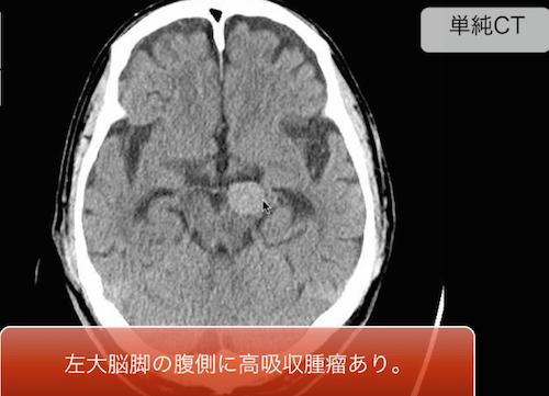 giant aneurysm