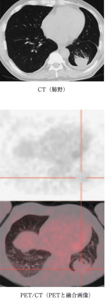 (round atelectasis)