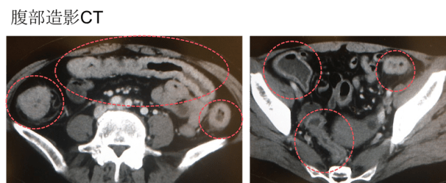 ulcerative colitis CT findings