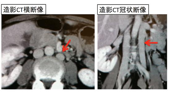 double IVC
