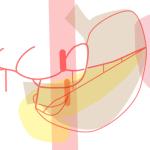 angio