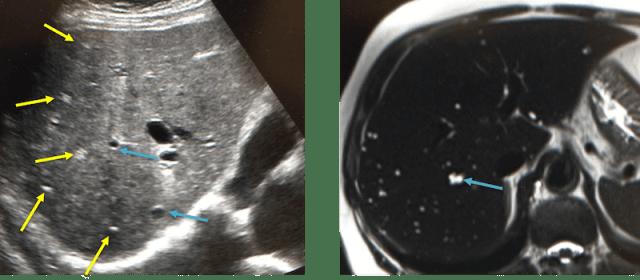 胆管性過誤腫のエコーおよびMRI画像
