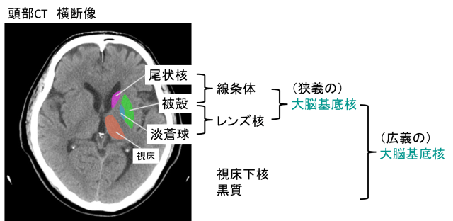 classification of basal ganglia