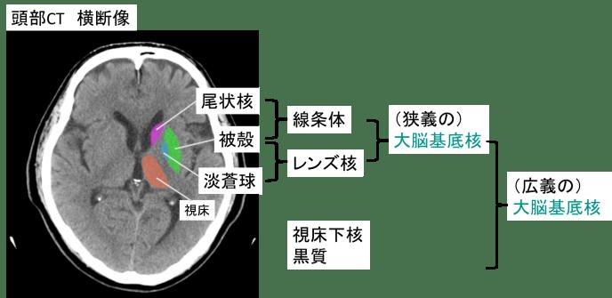 classification of basal ganglia