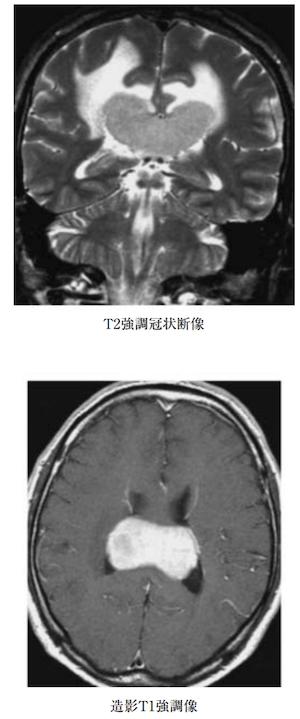 PRIMARY CENTRAL NERVOUS SYSTEM