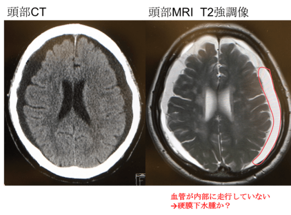 chronic subdural hematoma CT mri findings1