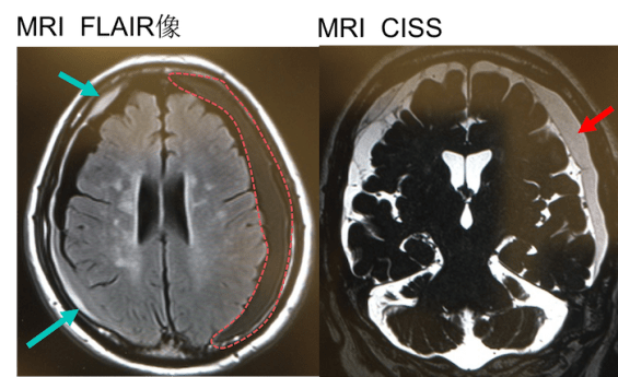 chronic subdural hematoma CT mri findings2