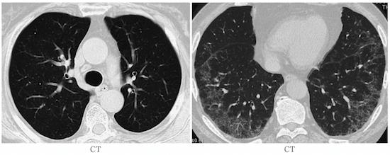 RA lung CT