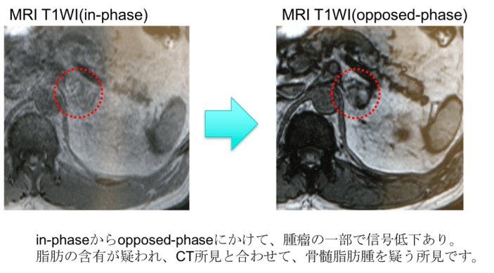 myelolipoma MRI findings