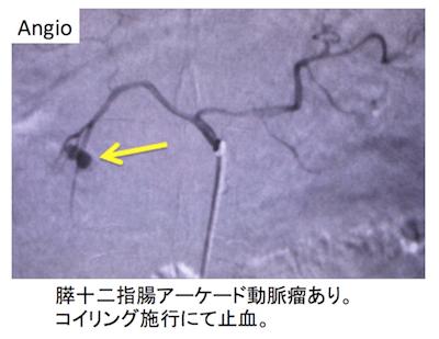 pseudoaneurysm2