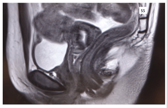 pelvic organ prolapse0