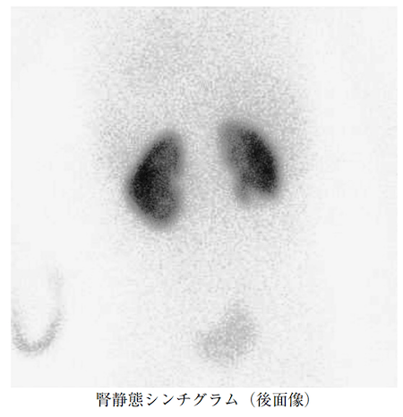 Static Renal Scintigraphy