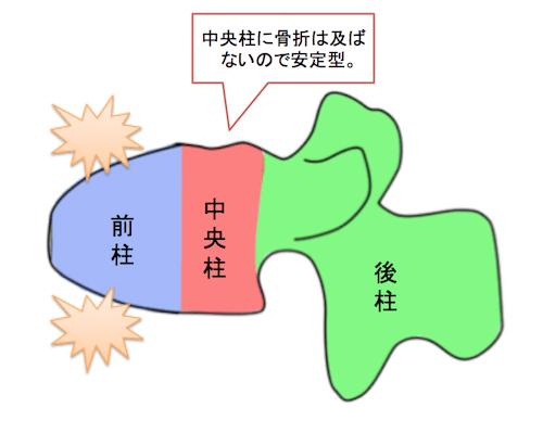 compressionfracture1