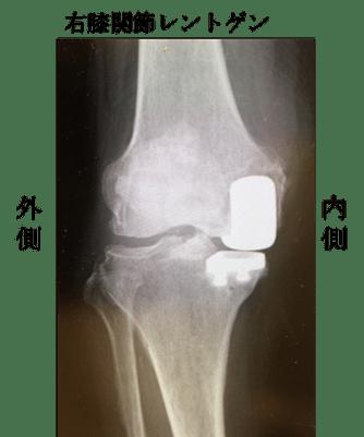 UKA(Unicompartmental Knee Arthroplasty)