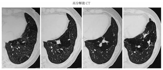 bronchial atresia