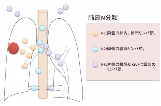 lungcancerNbunrui