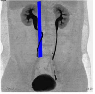 retrocaval ureter