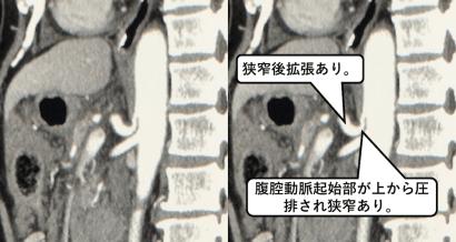 正中弓状靱帯症候群のCT画像