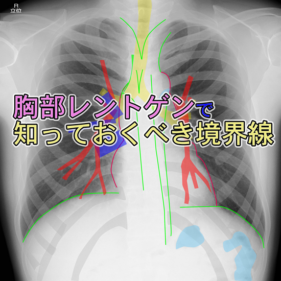 chest-X-ray-borderline