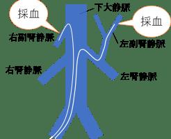 副腎静脈サンプリング