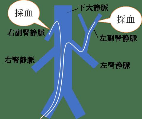Adrenal Vein Sampling