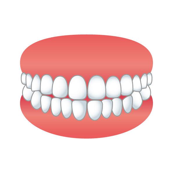 大人 歯ぎしり