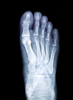 足の指の付け根
