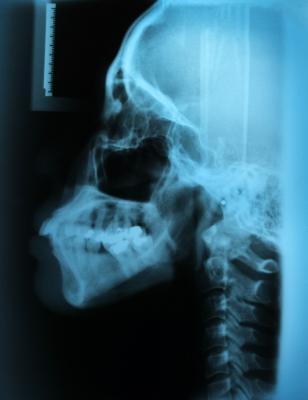 顎関節症 治し方