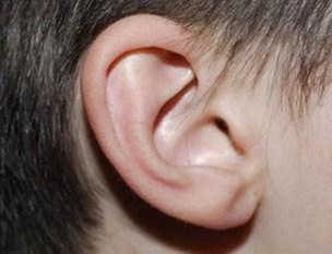 Resultado de imagen de orejas
