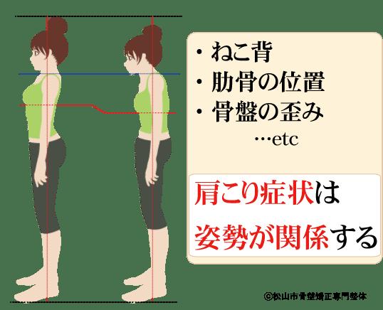 肩こりは姿勢が影響する