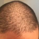 AGA治療32週目「薄毛対策は早く始めた方がいいに決まってる」