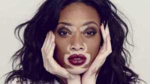 soñar con vitiligo