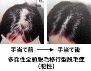 多発性全頭脱毛移行型脱毛症(悪性)手当て前と手当て後