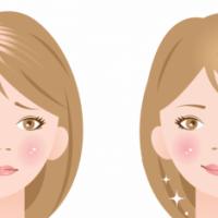 女性の薄毛の悩み
