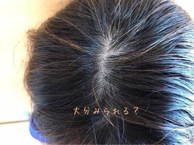 現在の頭皮 40代女性