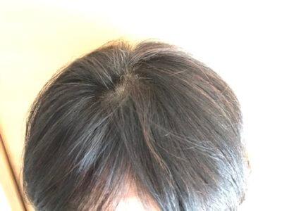最近の薄毛の感じはこれ