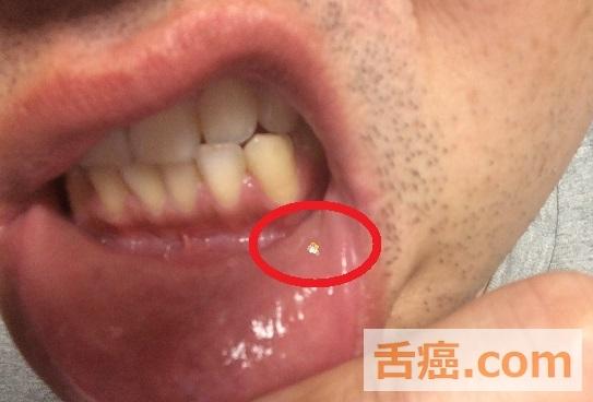 舌癌って舌がどうなることですか? | 舌癌と初期で宣告された ...