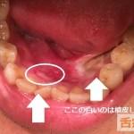 口内炎の画像