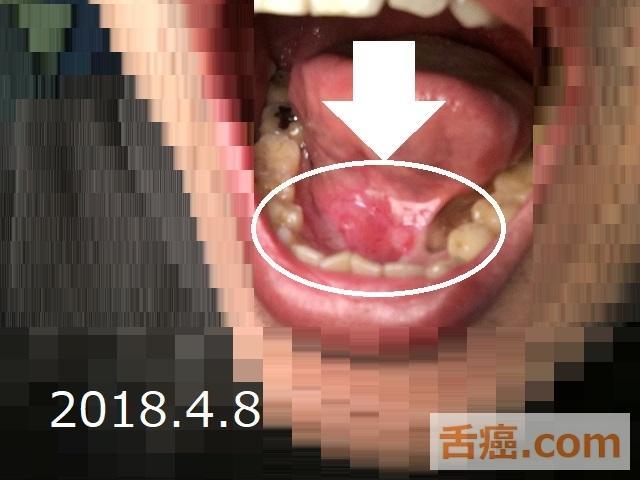ケナログの成果と舌癌の疑い