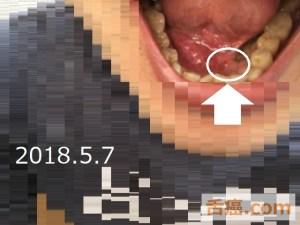 口の中の状態