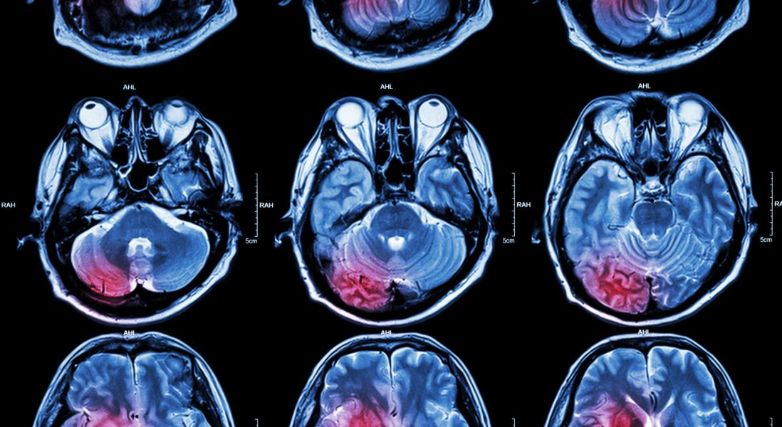 Growth Factor May Have Neuroprotective Effects On Aging Brain