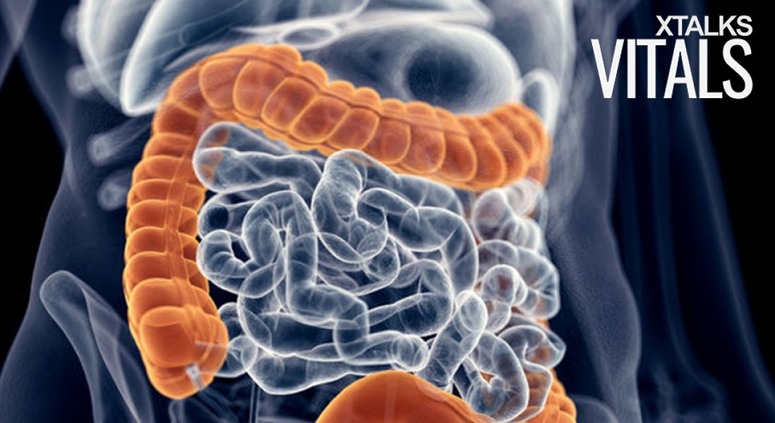 Food Additive Could Contribute To Development of Colon Cancer