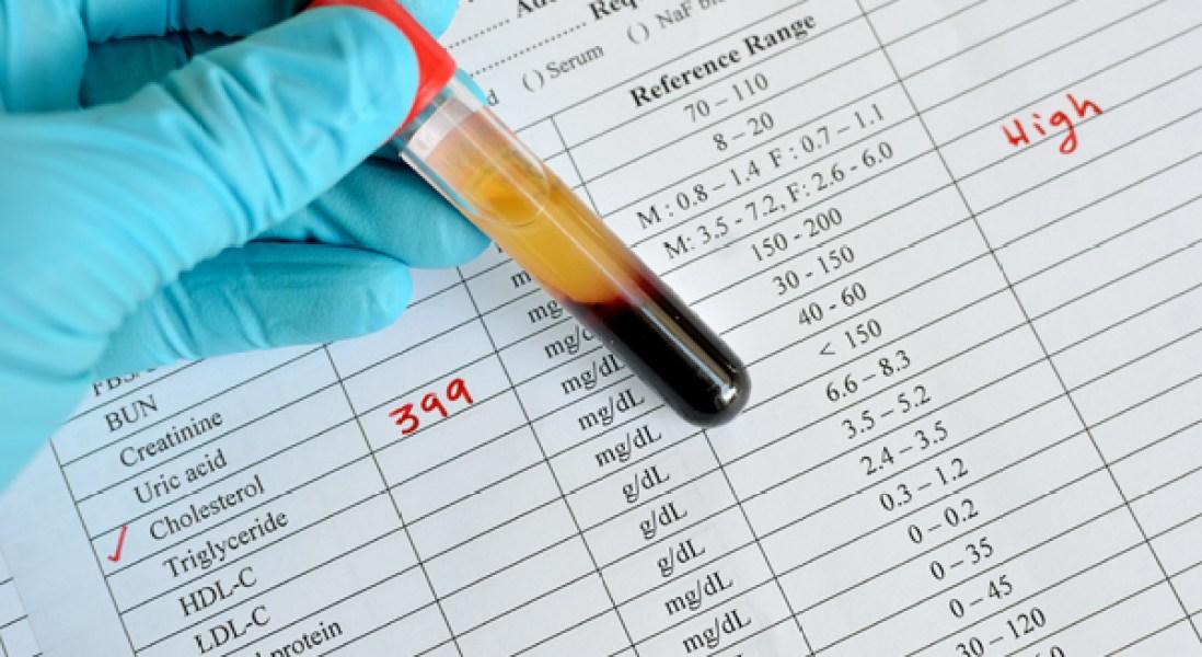 Pfizer Discontinues Development of PCSK9 Inhibitor