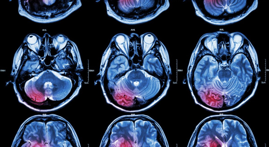 Gene Therapy Drug May Show Promise In Treatment Of Huntington's Disease