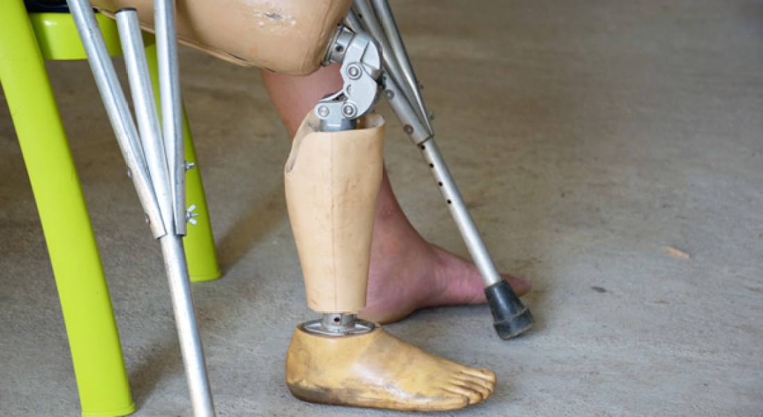 Interventional Procedure Could Help Eliminate Phantom Limb Pain