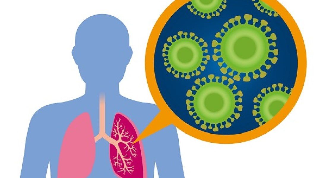 Pathogenic Lung Microbes Respond to Body's Stress Signals